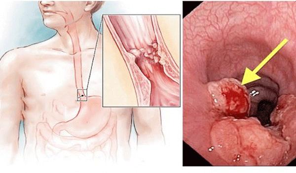 Ung thư thực quản có thể được chữa khỏi nếu như phát hiện sớm và điều trị kịp thời