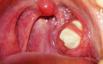 Bệnh nhân điều trị ung thư vòm họng có nên dùng KSol không?