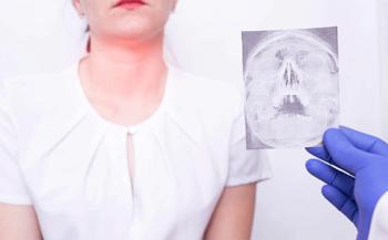 7 triệu chứng của bệnh ung thư vòm họng bạn chớ nên bỏ qua và chế độ dinh dưỡng