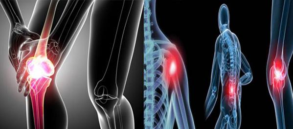 Ung thư xương thường gặp ở gần gối xa khuỷu