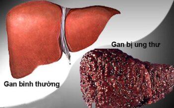 Ung thư gan có lây qua đường ăn uống không?