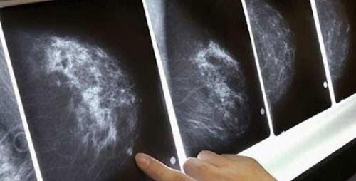 Để chẩn đoán ung thư vú ngoài thăm khám lâm sàng cần kết hợp chụp X-quang tuyến vú, siêu âm vú…
