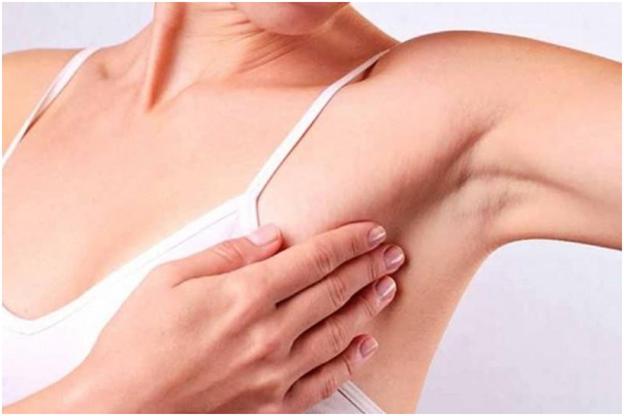 Sưng, đau hoặc xuất hiện hạch ở vùng nách có thể đây là dấu hiệu của ung thư vú