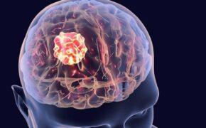 Mổ u não có nguy hiểm không và những lưu ý sau mổ u não là gì?