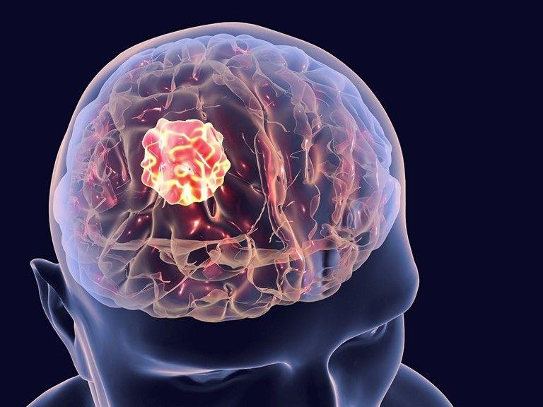 Mổ u não có nguy hiểm không là thắc mắc của bệnh nhân và người nhà