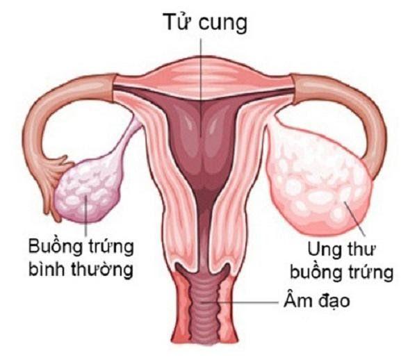 Ung thư buồng trứng xuất phát từ sự tăng trưởng bất thường của các tế bào ác tính tại buồng trứng