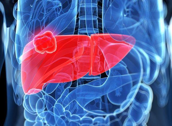 Ung thư gan nguyên phát là loại bệnh ung thư trong đó các tế bào ác tính (ung thư) phát sinh từ các mô trong gan.