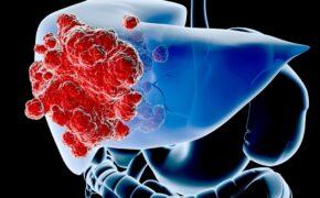 Ung thư gan – Những điều cần biết