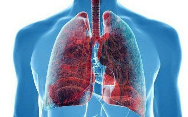 Những triệu chứng để phát hiện ung thư phổi
