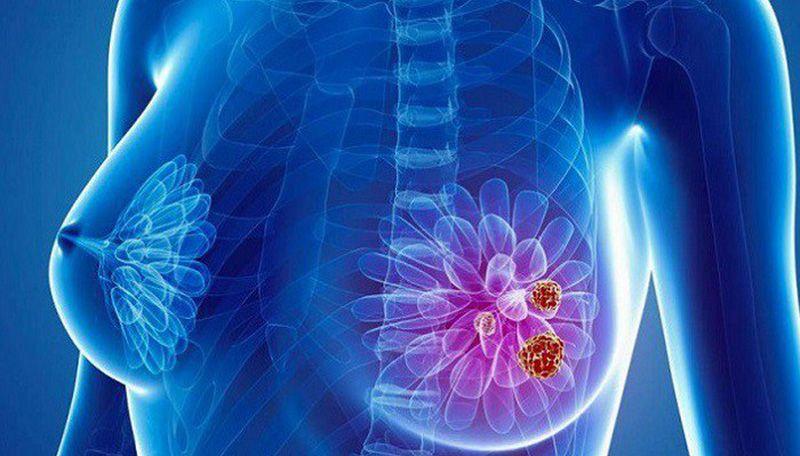 Ung thư vú - nguyên nhân gây tử vong hàng đầu do ung thư ở phụ nữ