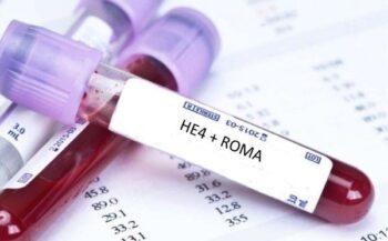 Các phương pháp xét nghiệm ung thư buồng trứng hiện nay