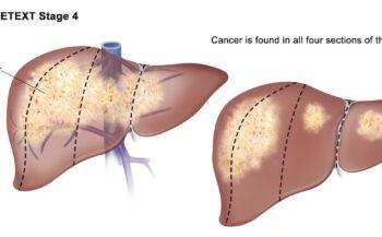 Dấu hiệu ung thư gan giai đoạn cuối