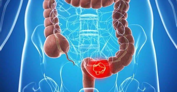 Biểu hiện ung thư trực tràng ở giai đoạn đầu thường dễ nhầm lẫn với những bệnh lý thông thường