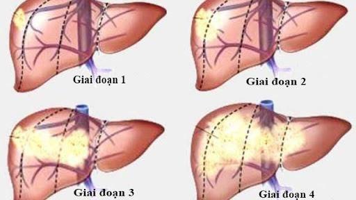 Hình ảnh các giai đoạn của ung thư gan