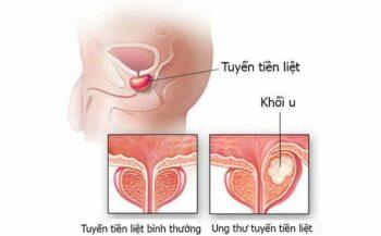 Tìm hiểu về ung thư tuyến tiền liệt