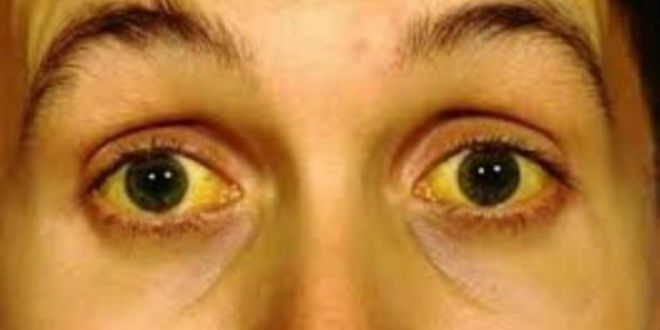 Vàng da, vàng mắt là những dấu hiệu ung thư gan di căn