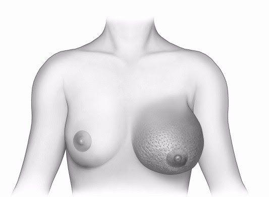 Da vú sần sùi như vỏ cam có thể là dấu hiệu ung thư vú viêm