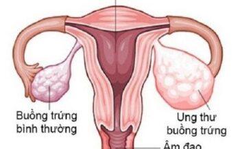 Các phương pháp điều trị ung thư buồng trứng