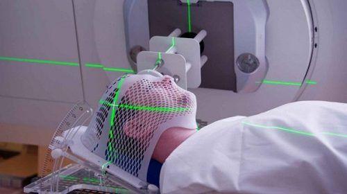 Xạ trị là một trong những cách điều trị ung thư vòm họng