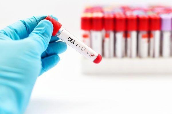 Xét nghiệm kháng nguyên CEA giúp phát hiện dấu ấn ung thư trực tràng