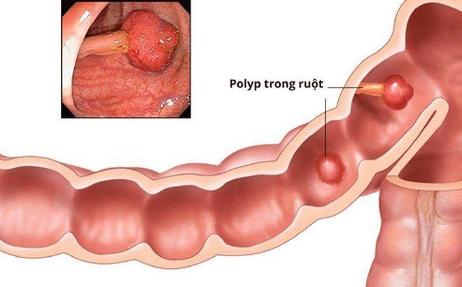 Polyp đại tràng có thể phát triển thành ung thư nếu không loại bỏ