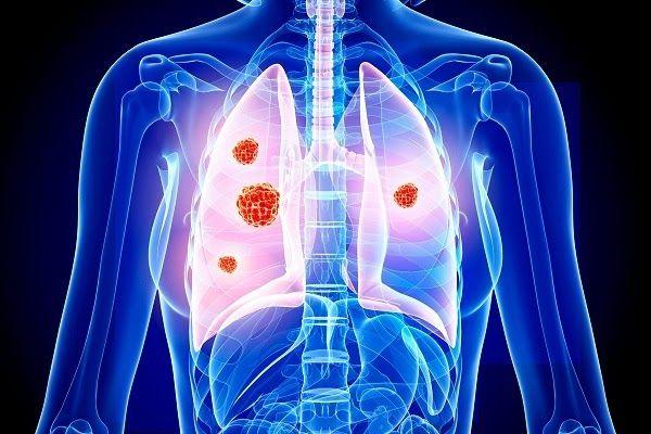Xạ trị ung thư phổi giúp ngăn ngừa ung thư tái phát