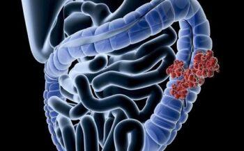 Các phương pháp điều trị ung thư biểu mô tuyến đại tràng