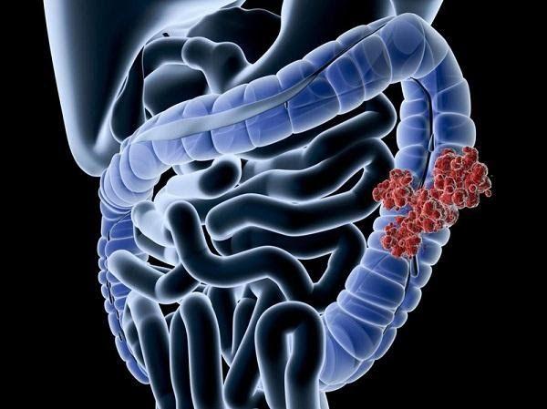 Hình ảnh ung thư biểu mô tuyến đại tràng