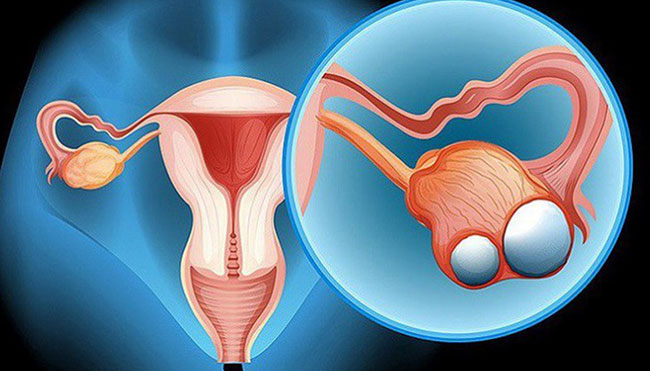 Ung thư buồng trứng ngày càng gia tăng và trẻ hóa