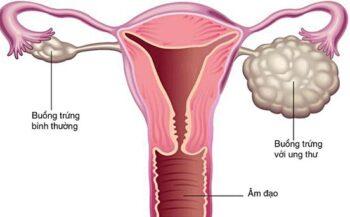 Dấu hiệu cảnh báo ung thư buồng trứng giai đoạn cuối