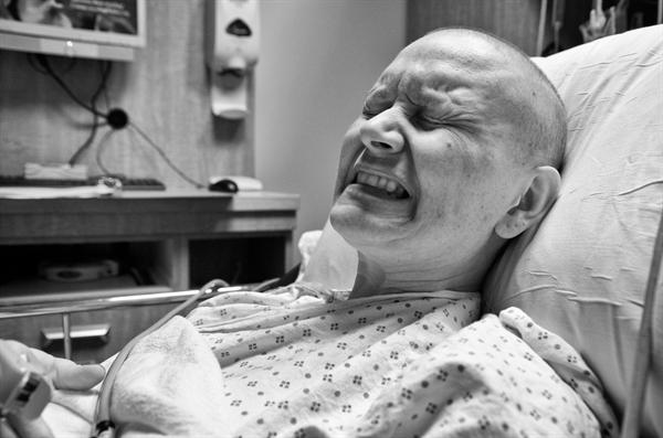 Bệnh nhân ung thư cổ tử cung di căn xương phải chịu nhiều cơn đau do khối u chèn ép các dây thần kinh