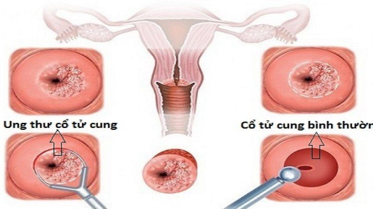 Ung thư cổ tử cung bắt đầu từ sự phát triển bất thường ở cổ tử cung, phần dưới của tử cung, lộ vào trong âm đạo