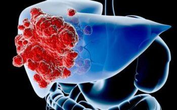 Ung thư gan giai đoạn cuối chữa khỏi được không?