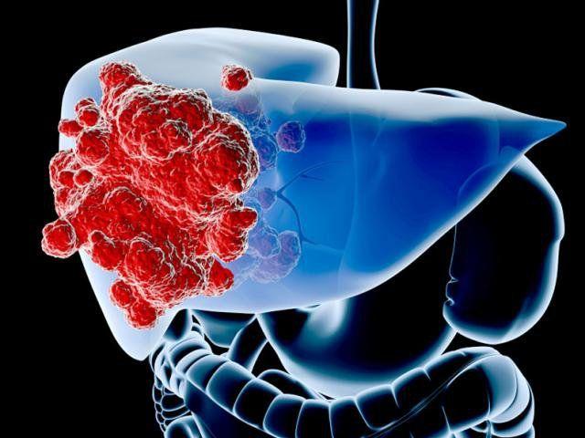 Ung thư gan là bệnh ung thư có tỷ lệ số ca mắc mới cao nhất ở Việt Nam hiện nay