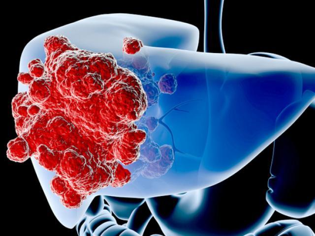 Có nhiều nguyên nhân dẫn đến ung thư gan