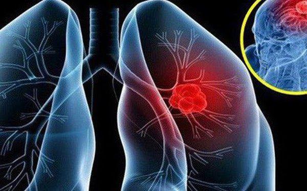 Ung thư phổi cực kỳ nguy hiểm do có thời gian tiến triển bệnh nhanh, tiên lượng sống dè dặt
