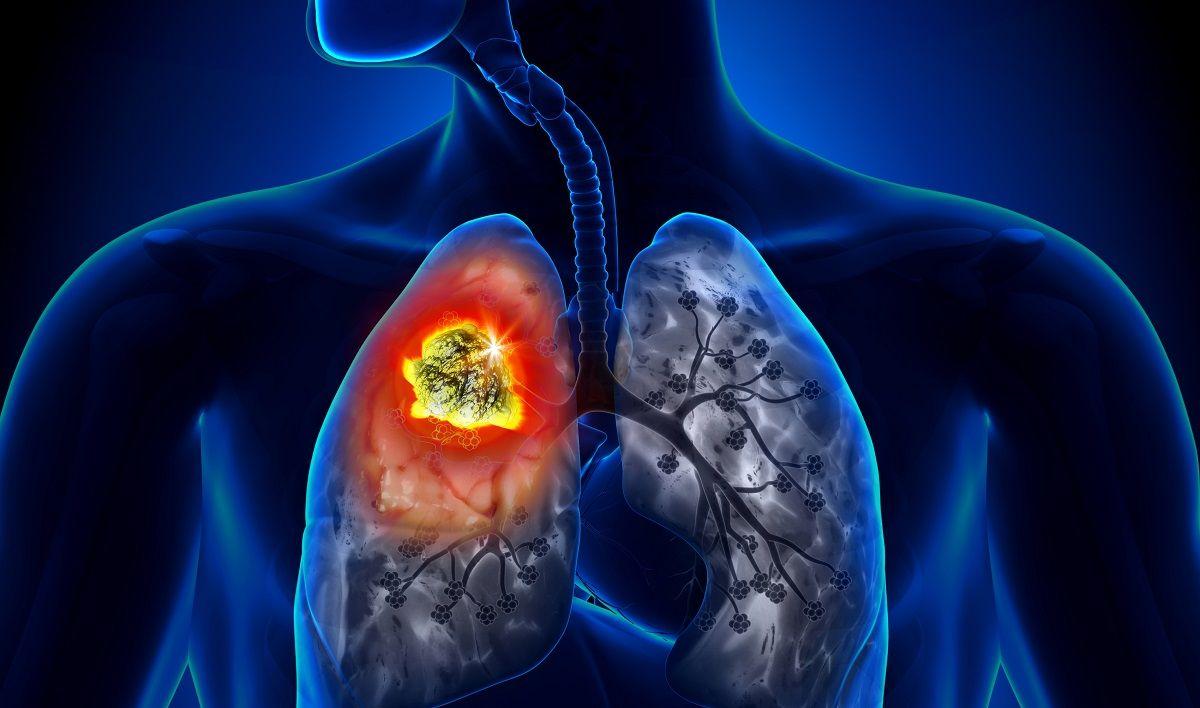 Ung thư phổi là bệnh lý nguy hiểm, có tỷ lệ tử vong cao