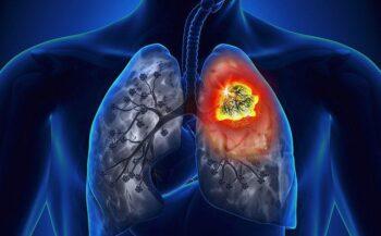 Tìm hiểu phương pháp hóa trị ung thư phổi