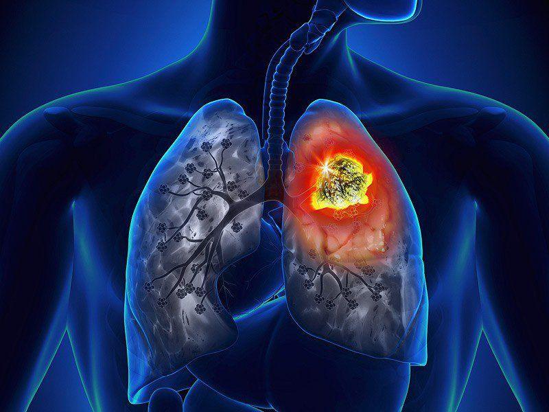 Ung thư phổi là bệnh lý nguy hiểm và ngày càng gia tăng
