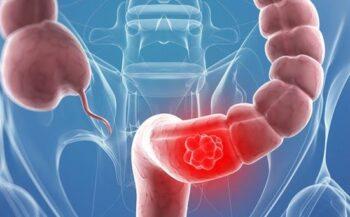 Dấu hiệu ung thư trực tràng di căn và cách điều trị