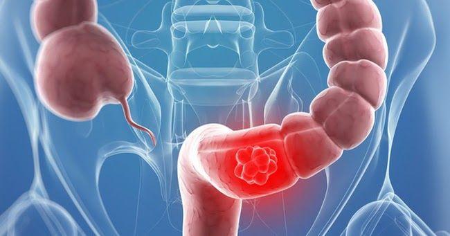 Ung thư trực tràng giai đoạn cuối có khả năng di căn đến nhiều cơ quan như phổi, gan, cổ tử cung