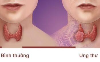 Mắc bệnh ung thư tuyến giáp có chữa được không