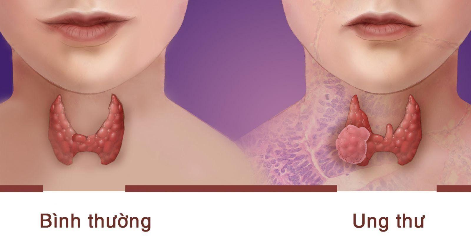 Ung thư tuyến giáp có chữa được không là thắc mắc của nhiều người