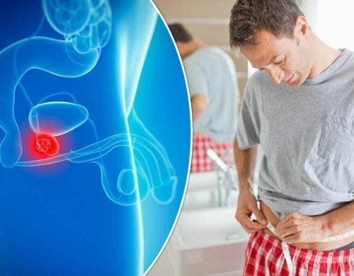 Nguy cơ mắc bệnh ung thư tuyến tiền liệt tăng nhanh ở độ tuổi ngoài 50