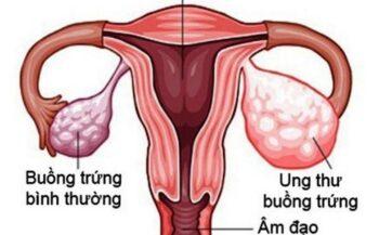 7 Nguyên nhân gây ung thư buồng trứng thường gặp
