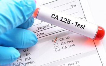 Các xét nghiệm ung thư buồng trứng có giá trị