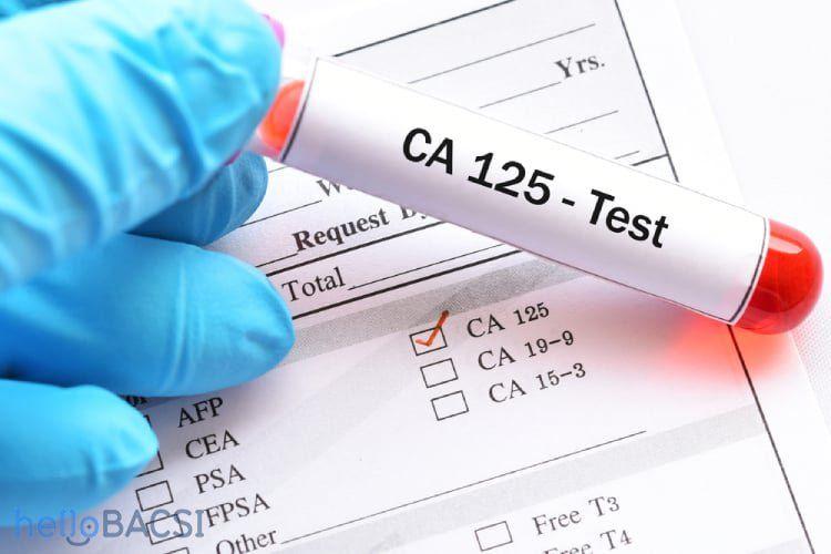 Xét nghiệm CA-125 giúp phát hiện ung thư buồng trứng