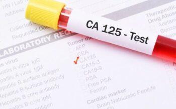 Tầm quan trọng của việc xét nghiệm ung thư buồng trứng