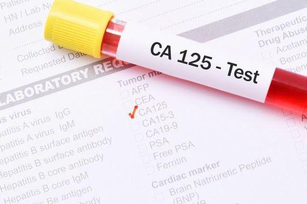 Một trong những xét nghiệm ung thư buồng trứng quan trọng là xét nghiệm CA 125