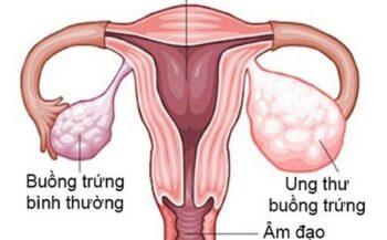 Dấu hiệu bệnh ung thư buồng trứng